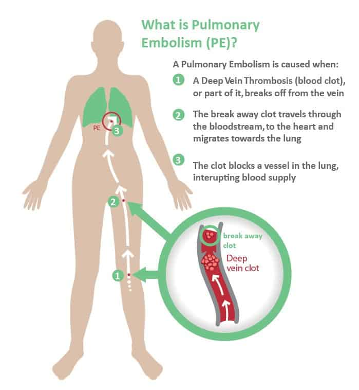 Air Travel and Venous Thromboembolism - Risk Factors and